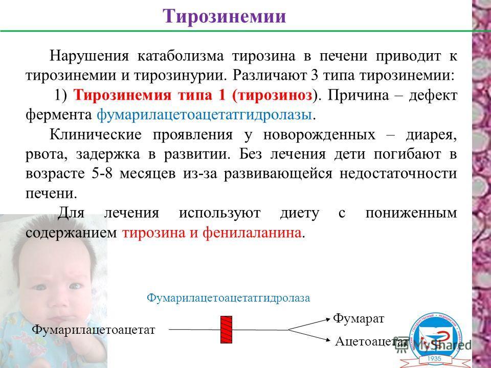 Нарушения катаболизма тирозина в печени приводит к тирозинемии и тирозинурии. Различают 3 типа тирозинемии: 1) Тирозинемия типа 1 (тирозиноз). Причина – дефект фермента фумарилацетоацетатгидролазы. Клинические проявления у новорожденных – диарея, рво