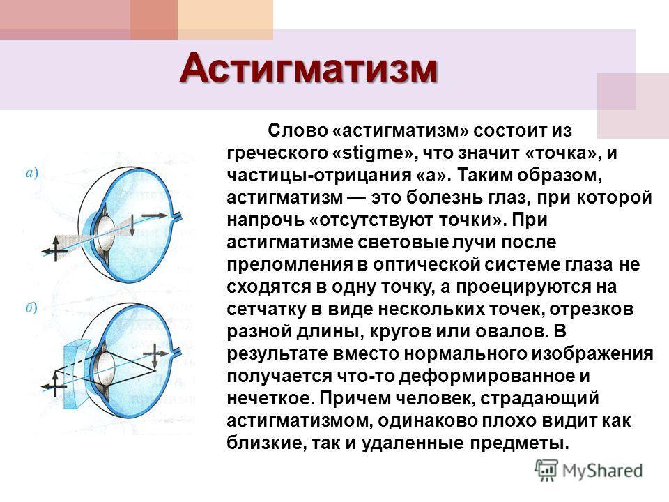 Астигматизм Слово «астигматизм» состоит из греческого «stigme», что значит «точка», и частицы-отрицания «а». Таким образом, астигматизм это болезнь глаз, при которой напрочь «отсутствуют точки». При астигматизме световые лучи после преломления в опти
