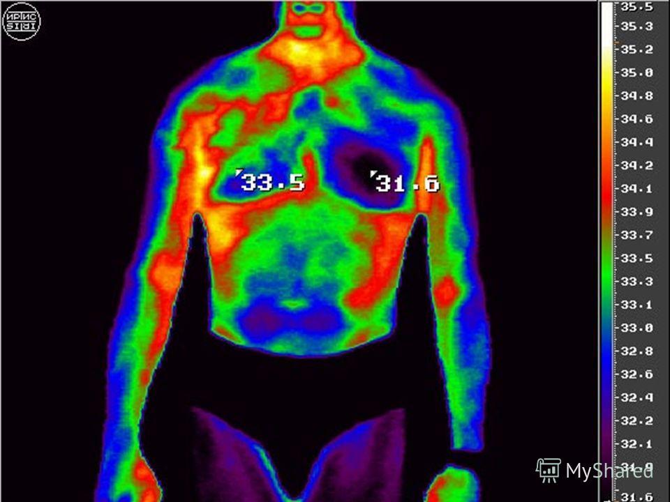 Было доказано, что инфракрасное излучение оказывает одновременно болеутоляющее, антиспазматическое, противовоспалительное, циркуляторное, стимулирующее и отвлекающее действие. Современные методы регистрации инфракрасного излучения позволяют обнаружив