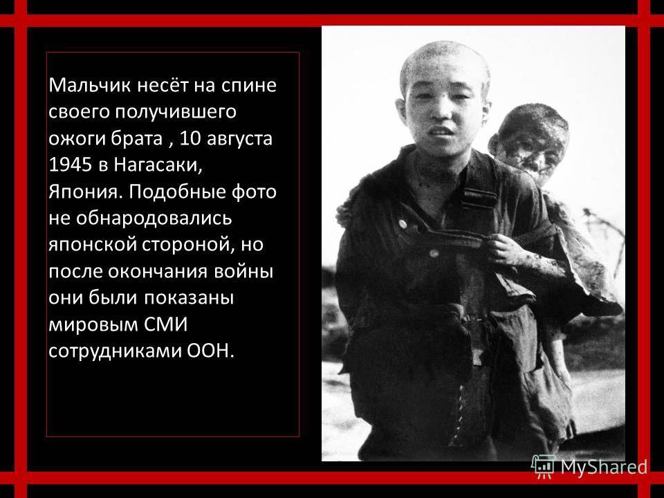 Мальчик несёт на спине своего получившего ожоги брата, 10 августа 1945 в Нагасаки, Япония. Подобные фото не обнародовались японской стороной, но после окончания войны они были показаны мировым СМИ сотрудниками ООН.