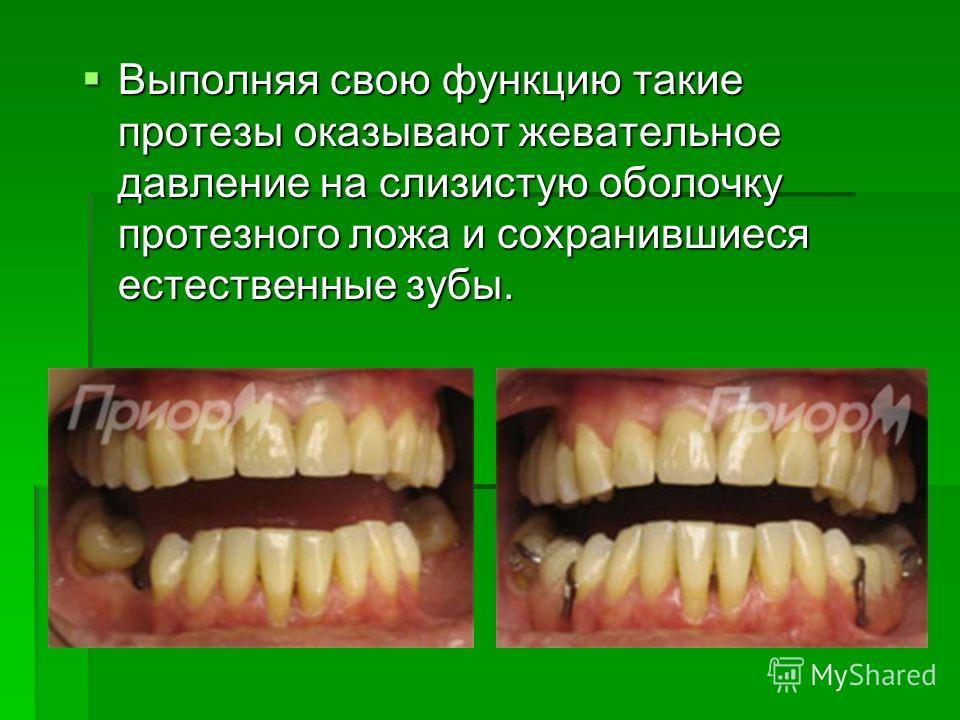 Выполняя свою функцию такие протезы оказывают жевательное давление на слизистую оболочку протезного ложа и сохранившиеся естественные зубы. Выполняя свою функцию такие протезы оказывают жевательное давление на слизистую оболочку протезного ложа и сох