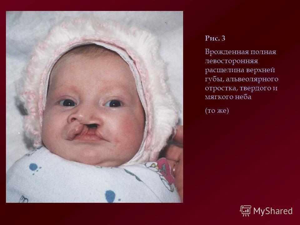 Рис. 3 Врожденная полная левосторонняя расщелина верхней губы, альвеолярного отростка, твердого и мягкого неба (то же)