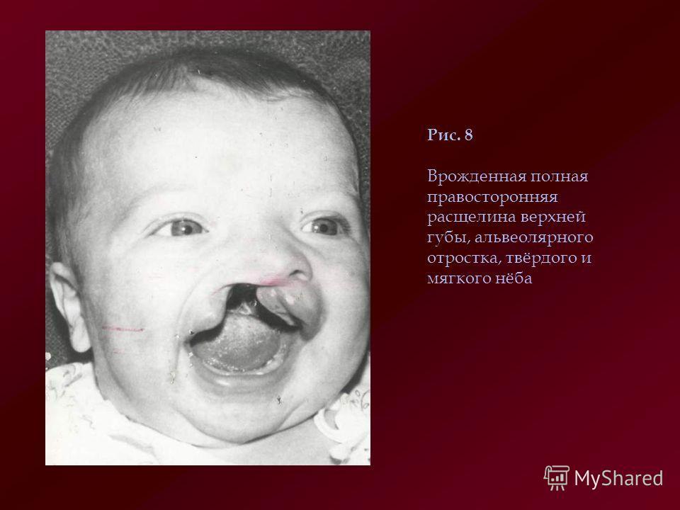 Рис. 8 Врожденная полная правосторонняя расщелина верхней губы, альвеолярного отростка, твёрдого и мягкого нёба
