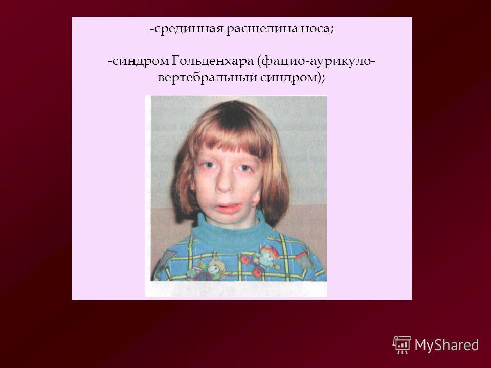 Синдром Пьера Робена фото