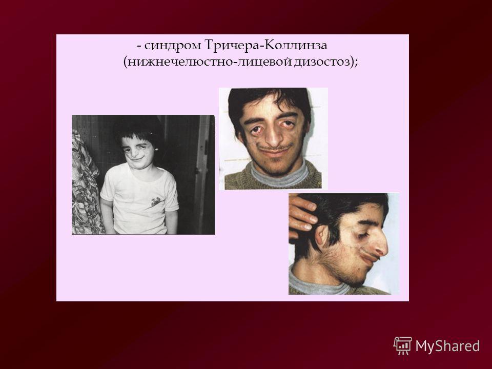 - синдром Тричера-Коллинза (нижнечелюстно-лицевой дизостоз);