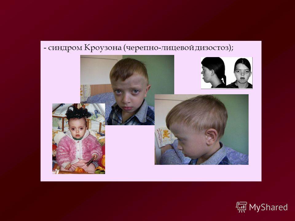 - синдром Кроузона (черепно-лицевой дизостоз);