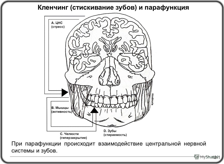 12-1 Кленчинг (стискивание зубов) и парафункция А. ЦНС (стресс) C. Челюсти (гиперзакрытие) B. Мышцы (активность) D. Зубы (стираемость) При парафункции происходит взаимодействие центральной нервной системы и зубов.
