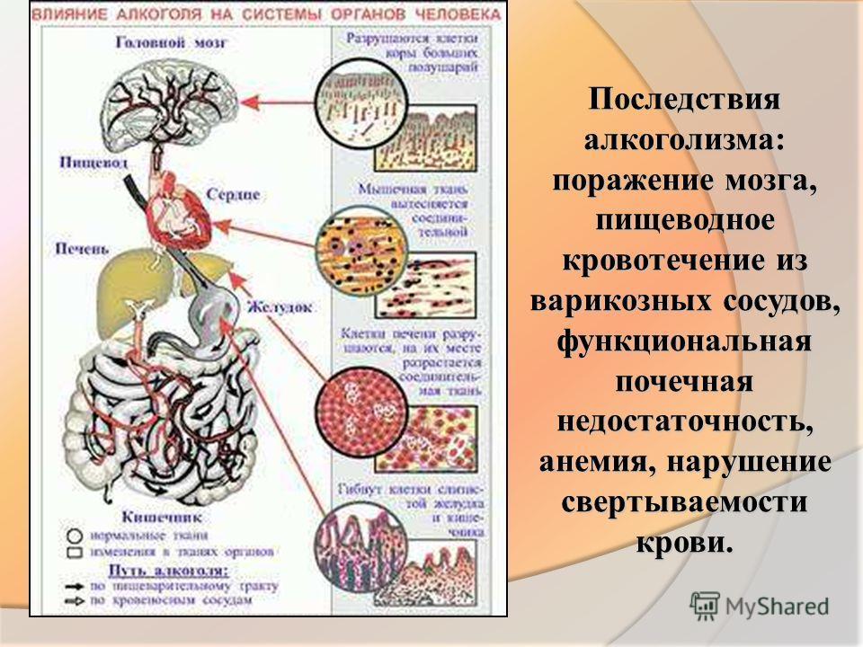 Последствия алкоголизма: поражение мозга, пищеводное кровотечение из варикозных сосудов, функциональная почечная недостаточность, анемия, нарушение свертываемости крови.