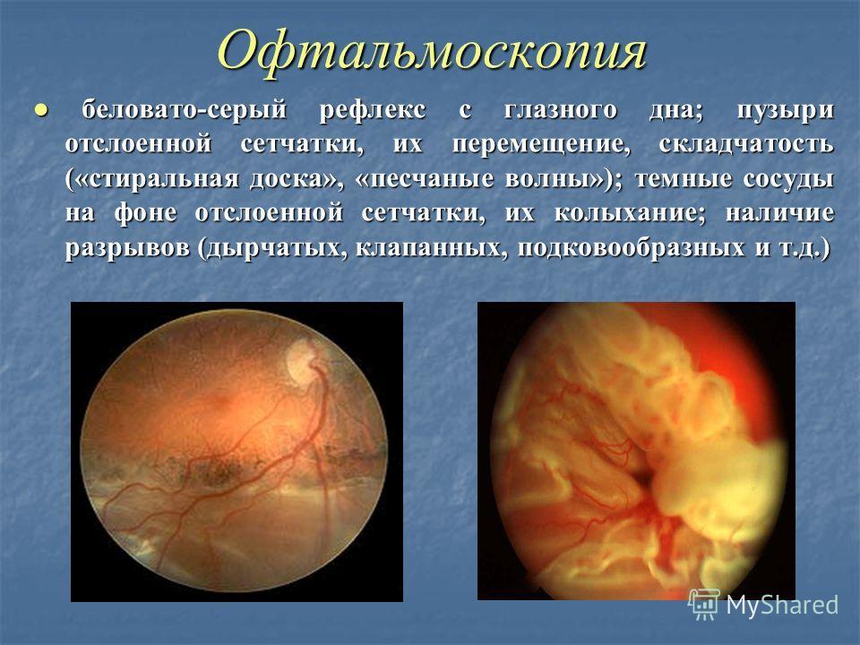 Офтальмоскопия беловато-серый рефлекс с глазного дна; пузыри отслоенной сетчатки, их перемещение, складчатость («стиральная доска», «песчаные волны»); темные сосуды на фоне отслоенной сетчатки, их колыхание; наличие разрывов (дырчатых, клапанных, под