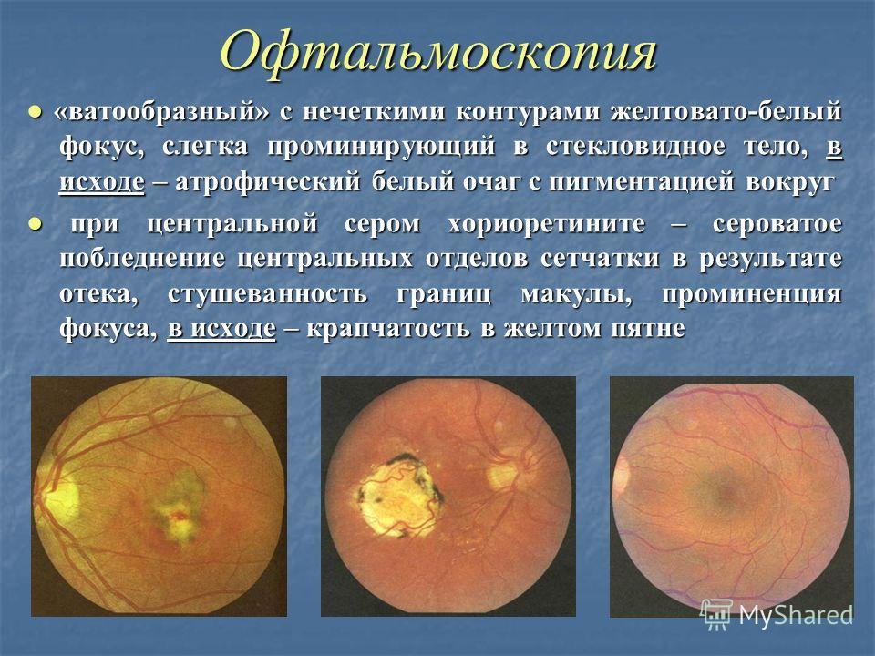 Офтальмоскопия «ватообразный» с нечеткими контурами желтовато-белый фокус, слегка проминирующий в стекловидное тело, в исходе – атрофический белый очаг с пигментацией вокруг «ватообразный» с нечеткими контурами желтовато-белый фокус, слегка проминиру
