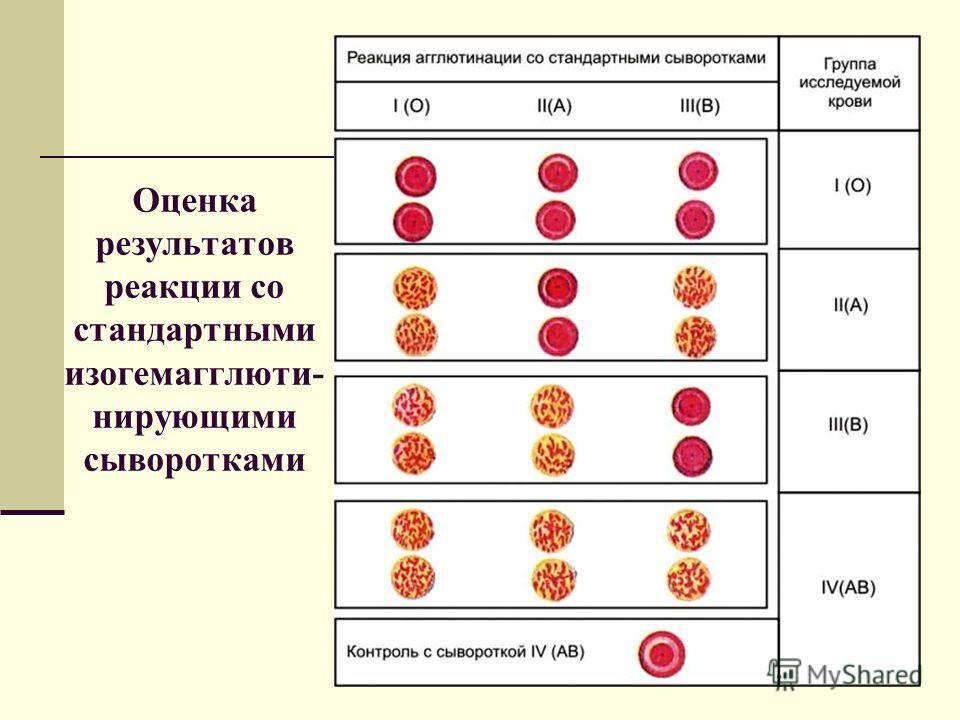 Оценка результатов реакции со стандартными изогемагглюти- нирующими сыворотками