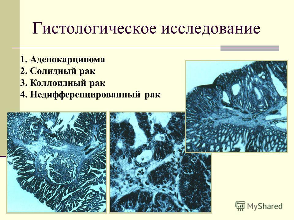 1. Аденокарцинома 2. Солидный рак 3. Коллоидный рак 4. Недифференцированный рак Гистологическое исследование