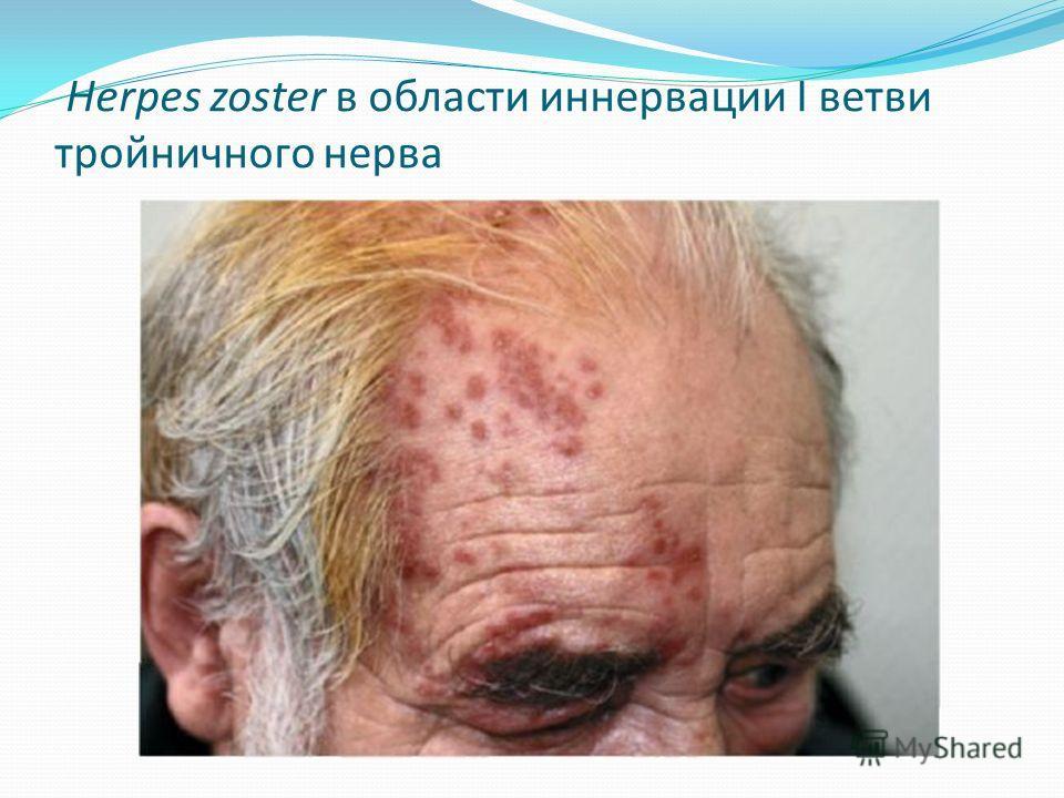 Herpes zoster в области иннервации I ветви тройничного нерва