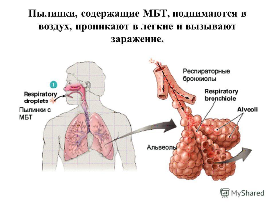 Пылинки, содержащие МБТ, поднимаются в воздух, проникают в легкие и вызывают заражение.