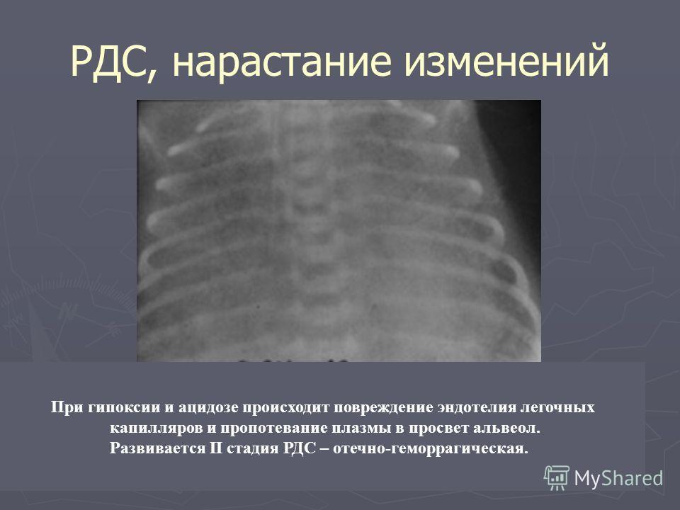 РДС, нарастание изменений При гипоксии и ацидозе происходит повреждение эндотелия легочных капилляров и пропотевание плазмы в просвет альвеол. Развивается II стадия РДС – отечно-геморрагическая.