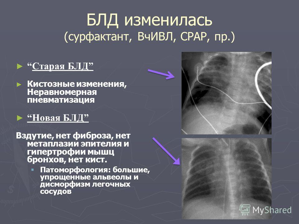 БЛД изменилась (сурфактант, ВчИВЛ, СРАР, пр.) Старая БЛД Кистозные изменения, Неравномерная пневматизация Новая БЛД Вздутие, нет фиброза, нет метаплазии эпителия и гипертрофии мышц бронхов, нет кист. Патоморфология: большие, упрощенные альвеолы и дис