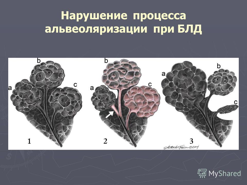 Нарушение процесса альвеоляризации при БЛД