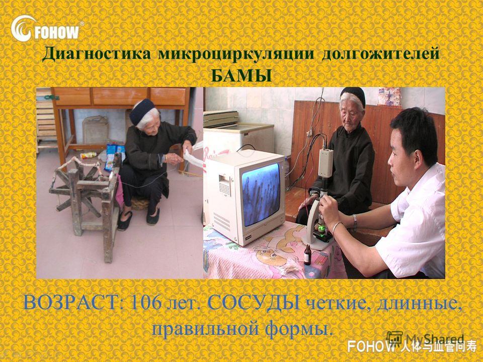 Диагностика микроциркуляции долгожителей БАМЫ ВОЗРАСТ: 106 лет. СОСУДЫ четкие, длинные, правильной формы.