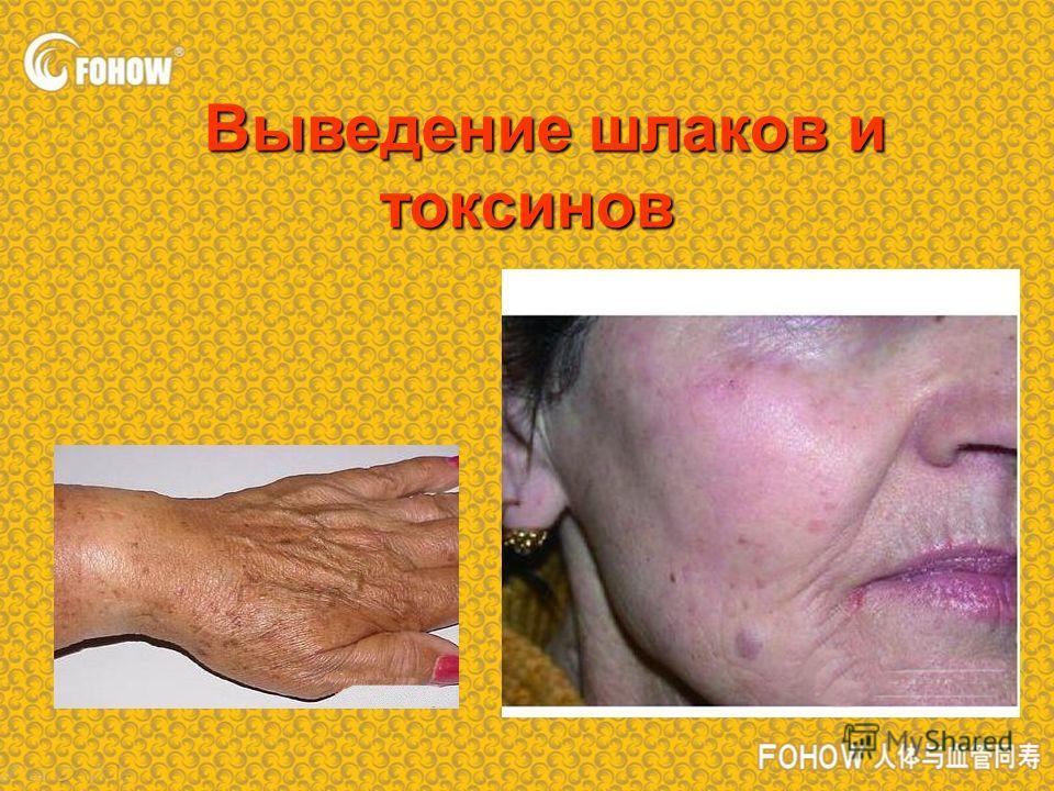 Выведение шлаков и токсинов Выведение шлаков и токсинов