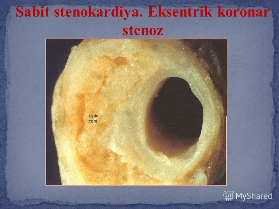 Sabit stenokardiya. Eksentrik koronar stenoz