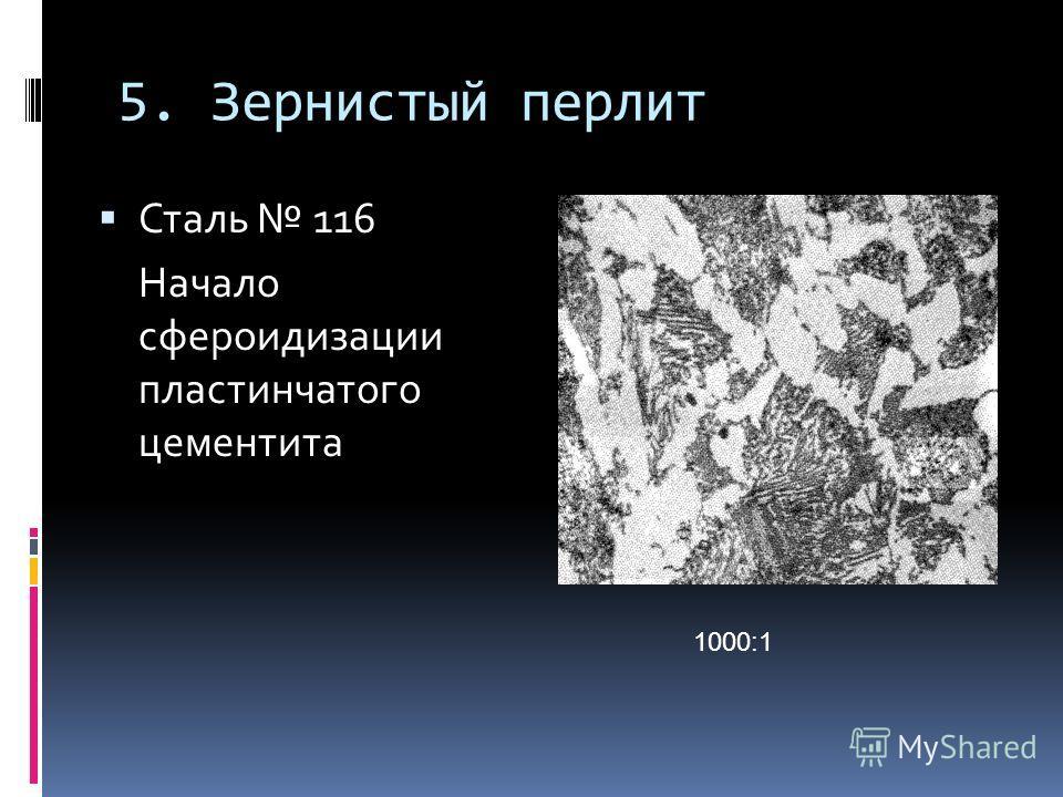 5. Зернистый перлит Сталь 116 Начало сфероидизации пластинчатого цементита 1000:1