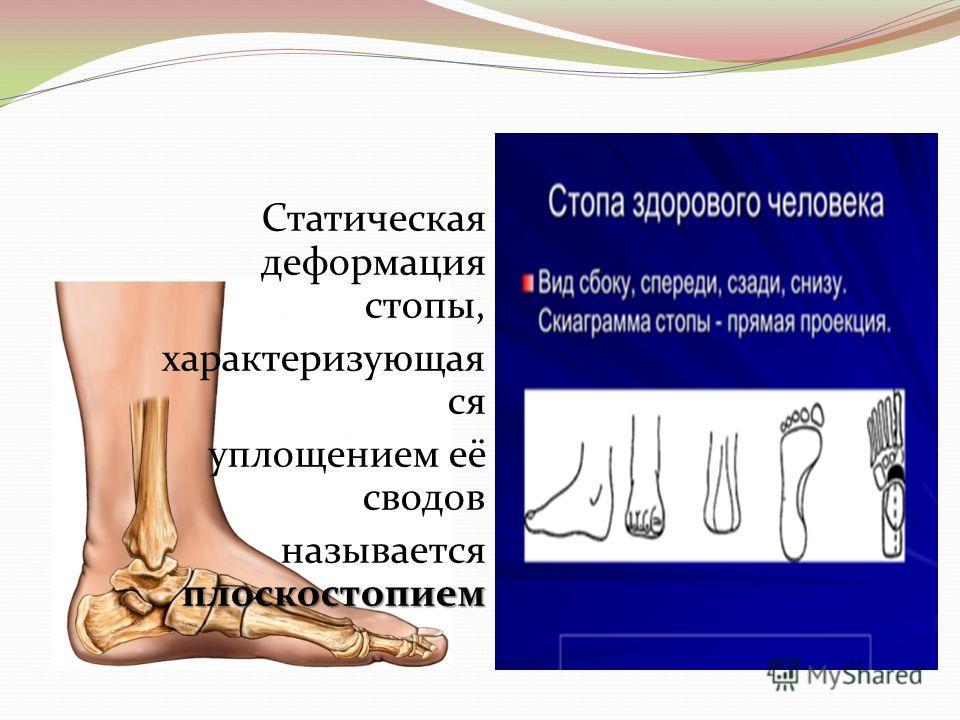 Статическая деформация стопы, характеризующая ся уплощением её сводов плоскостопием называется плоскостопием