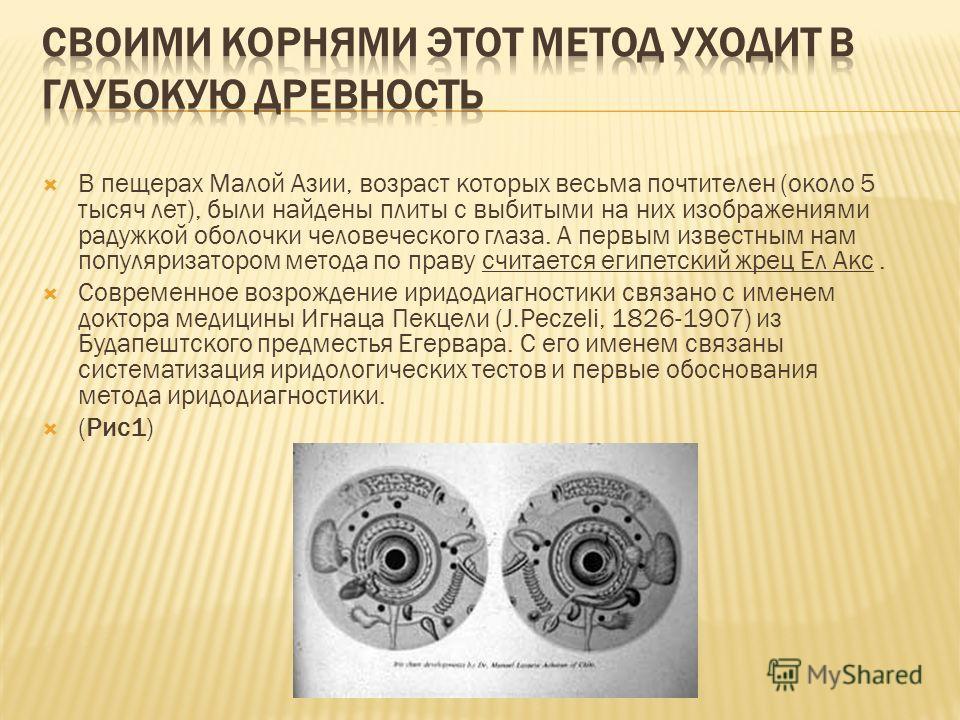 В пещерах Малой Азии, возраст которых весьма почтителен (около 5 тысяч лет), были найдены плиты с выбитыми на них изображениями радужкой оболочки человеческого глаза. А первым известным нам популяризатором метода по праву считается египетский жрец Ел