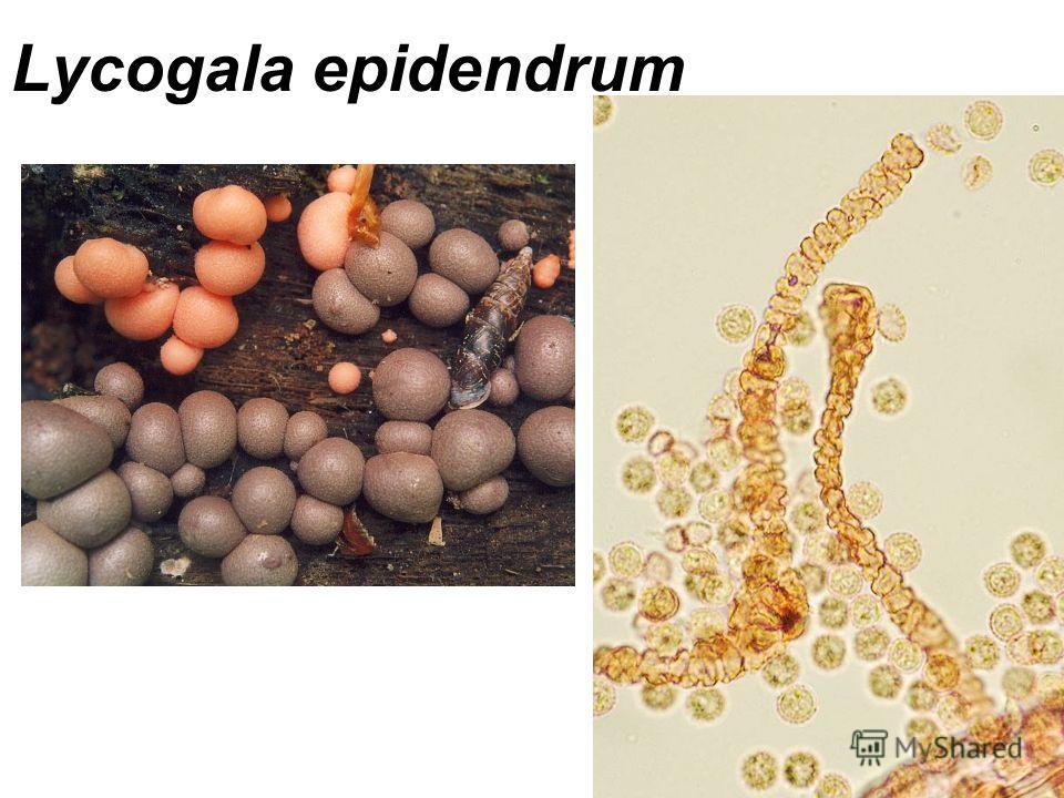 Lycogala epidendrum