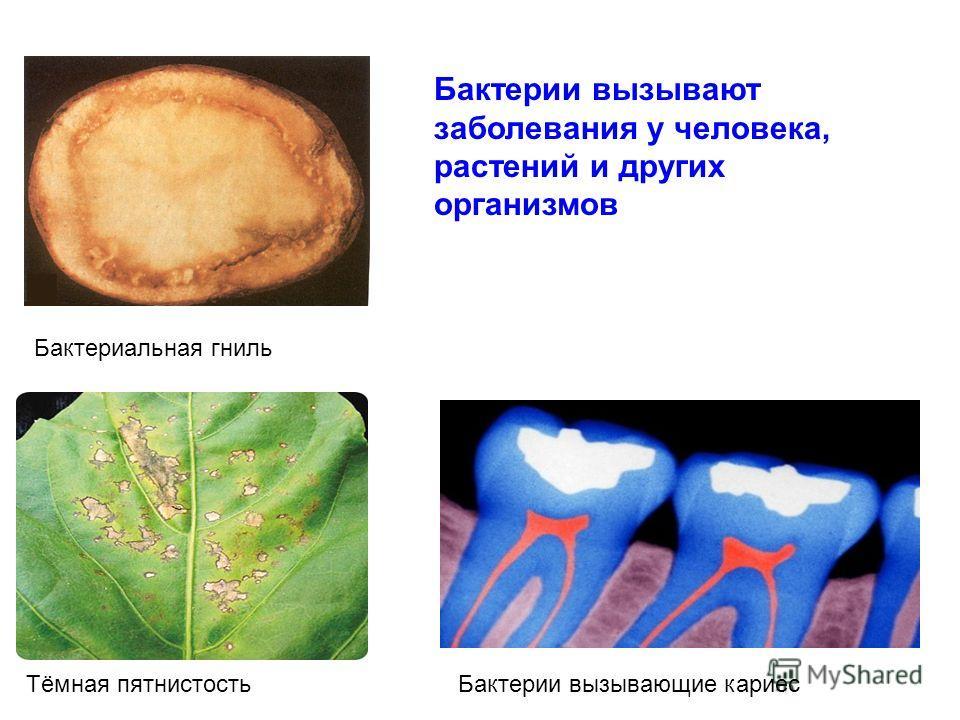 Бактериальная гниль Тёмная пятнистостьБактерии вызывающие кариес Бактерии вызывают заболевания у человека, растений и других организмов