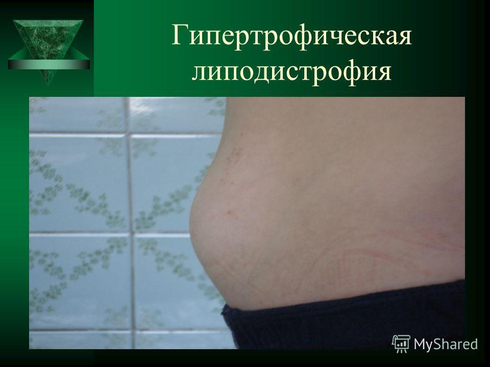 Гипертрофическая липодистрофия