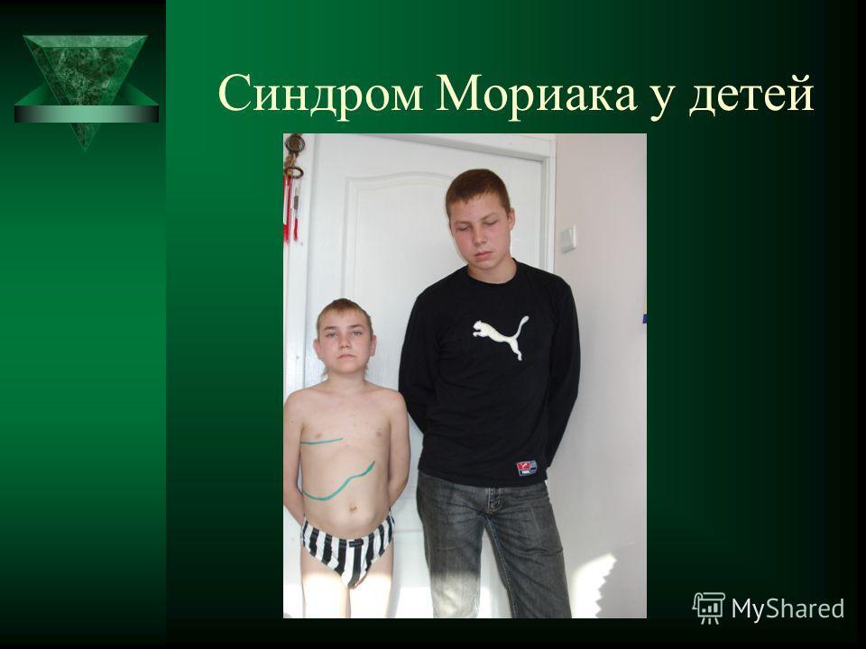 Синдром Мориака у детей