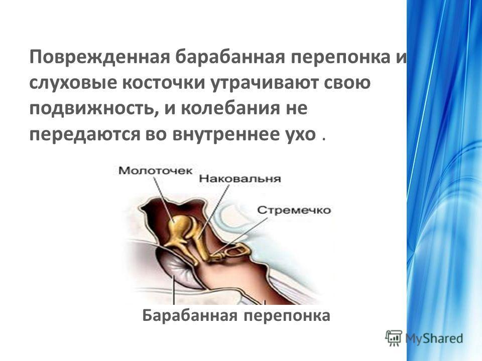 Поврежденная барабанная перепонка и слуховые косточки утрачивают свою подвижность, и колебания не передаются во внутреннее ухо. Барабанная перепонка