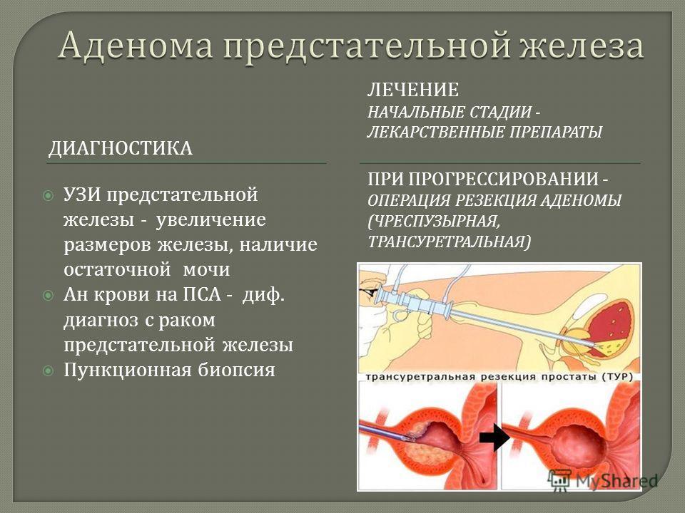 Показать аденому предстательной железы