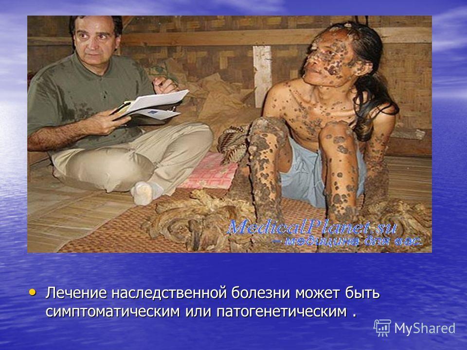 Лечение наследственной болезни может быть симптоматическим или патогенетическим.