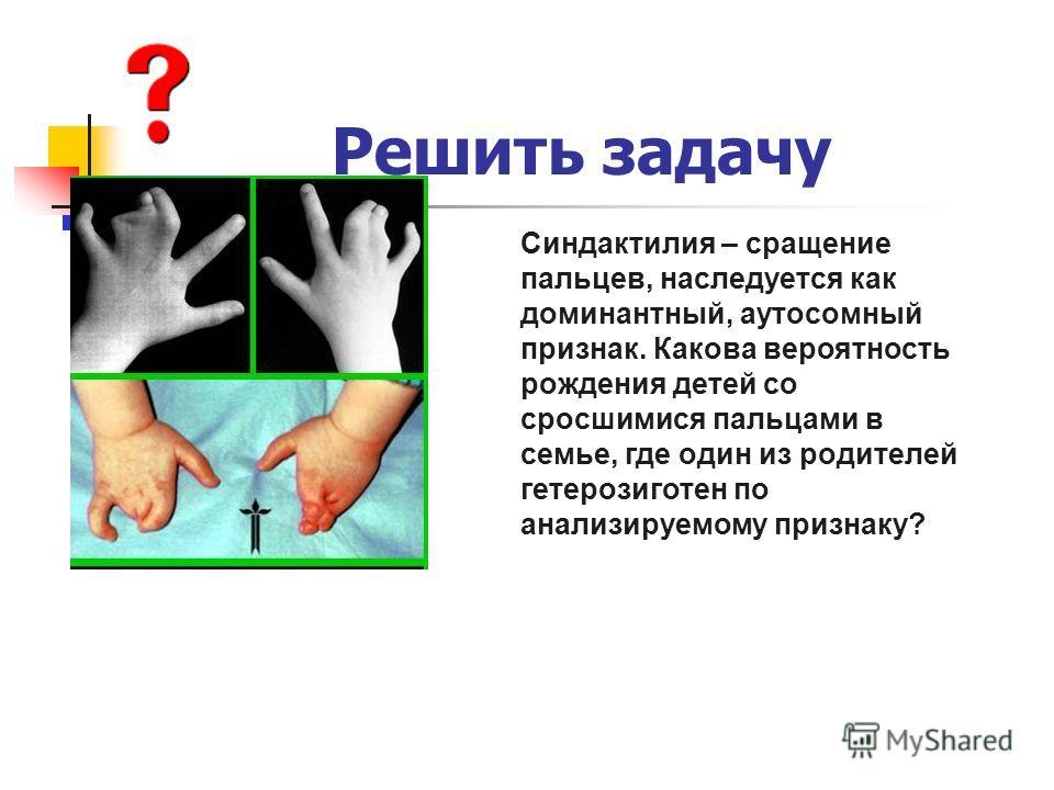 Решить задачу Синдактилия – сращение пальцев, наследуется как доминантный, аутосомный признак. Какова вероятность рождения детей со сросшимися пальцами в семье, где один из родителей гетерозиготен по анализируемому признаку?