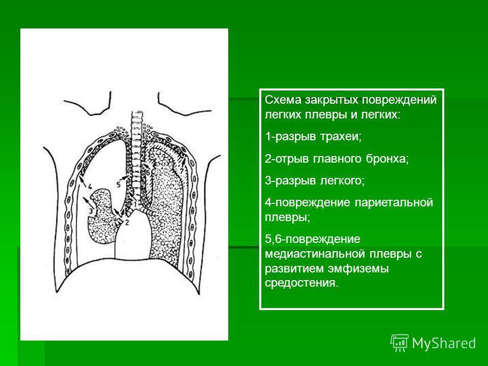 Схема закрытых повреждений легких плевры и легких: 1-разрыв трахеи; 2-отрыв главного бронха; 3-разрыв легкого; 4-повреждение париетальной плевры; 5,6-повреждение медиастинальной плевры с развитием эмфиземы средостения.