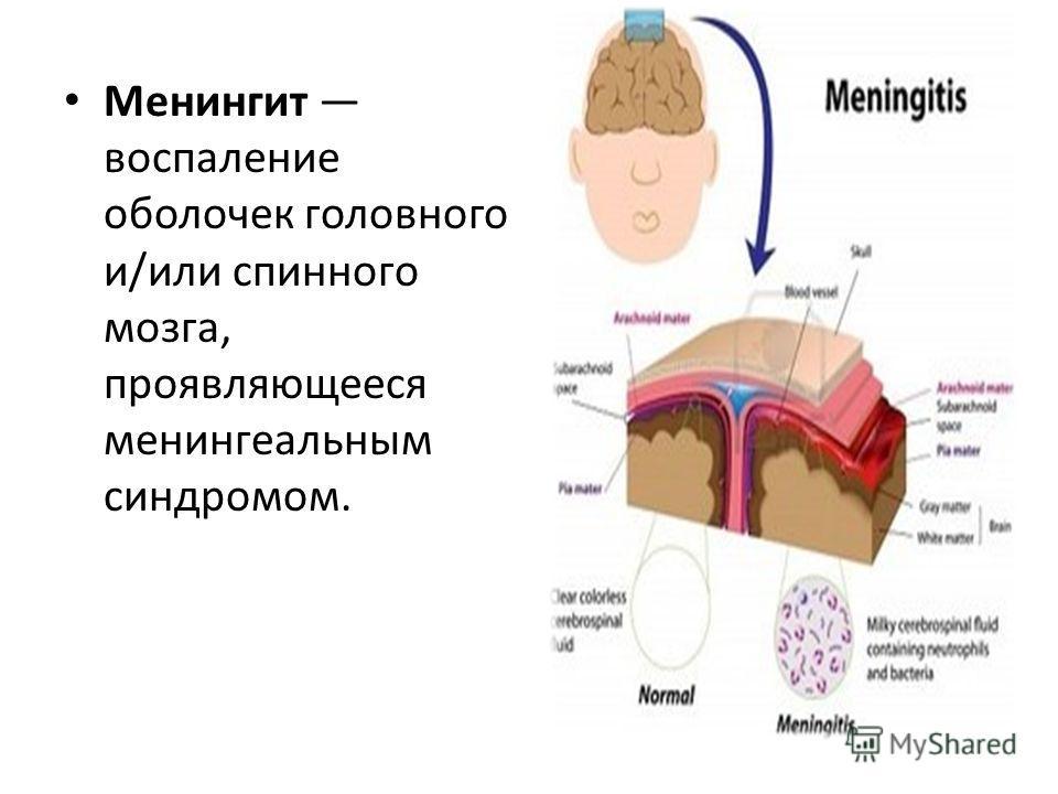 Менингит воспаление оболочек головного и/или спинного мозга, проявляющееся менингеальным синдромом.