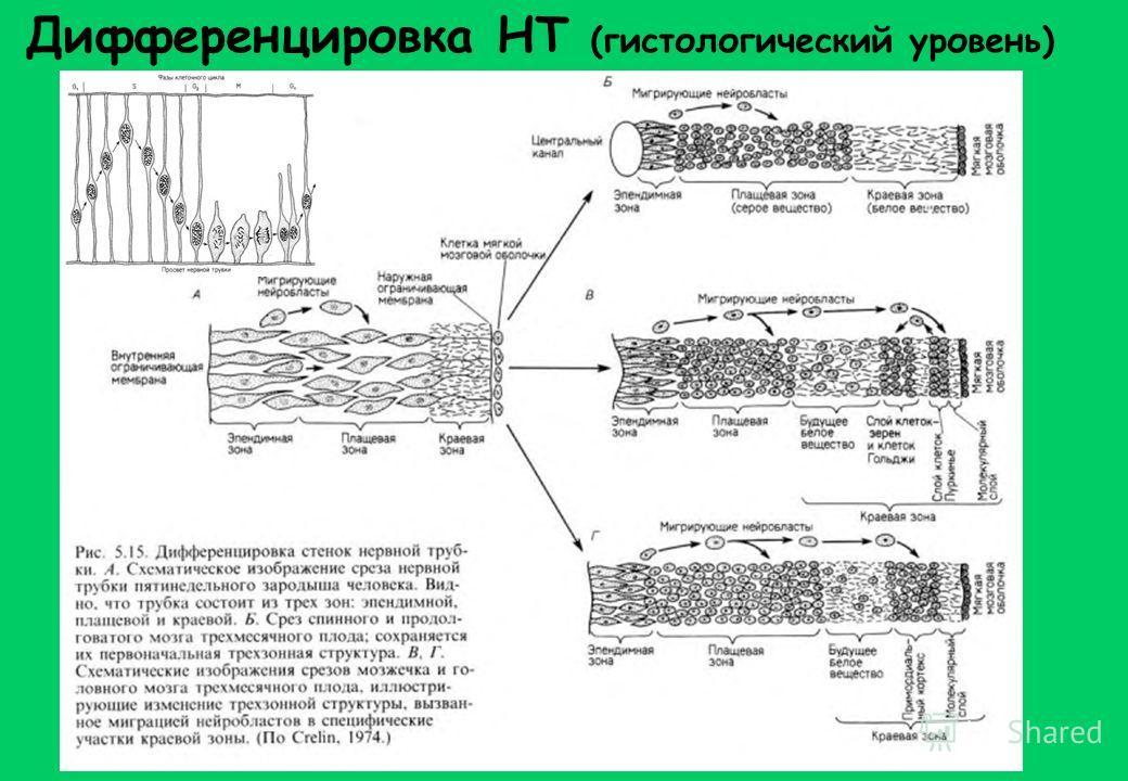 Дифференцировка НТ (гистологический уровень)