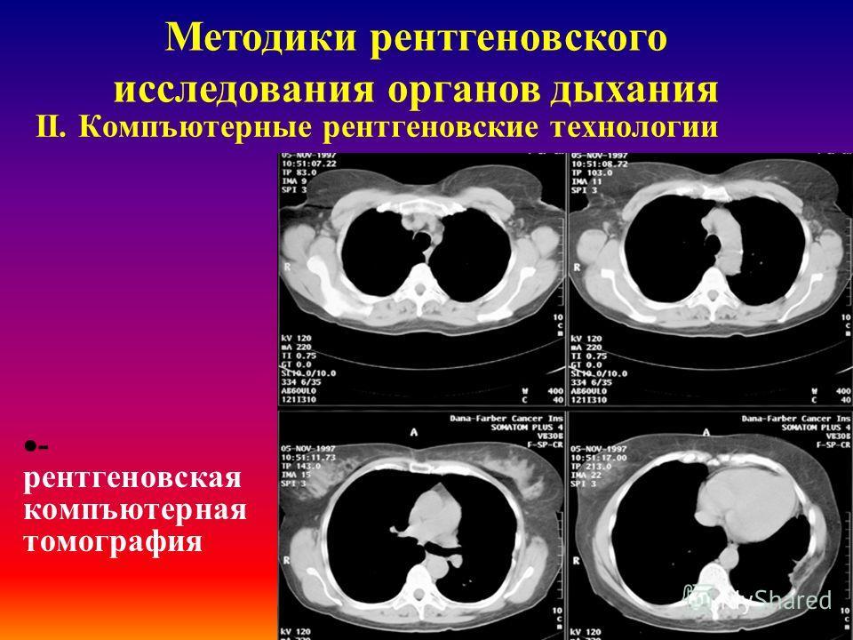 ІІ. Компъютерные рентгеновские технологии дигитальная рентгенография Методики рентгеновского исследования органов дыхания