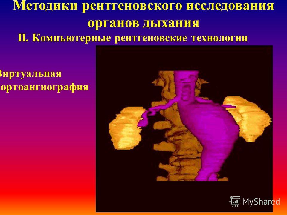 ІІ. Компъютерные рентгеновские технологии Методики рентгеновского исследования органов дыхания Виртуальная внешняя бронхоскопия
