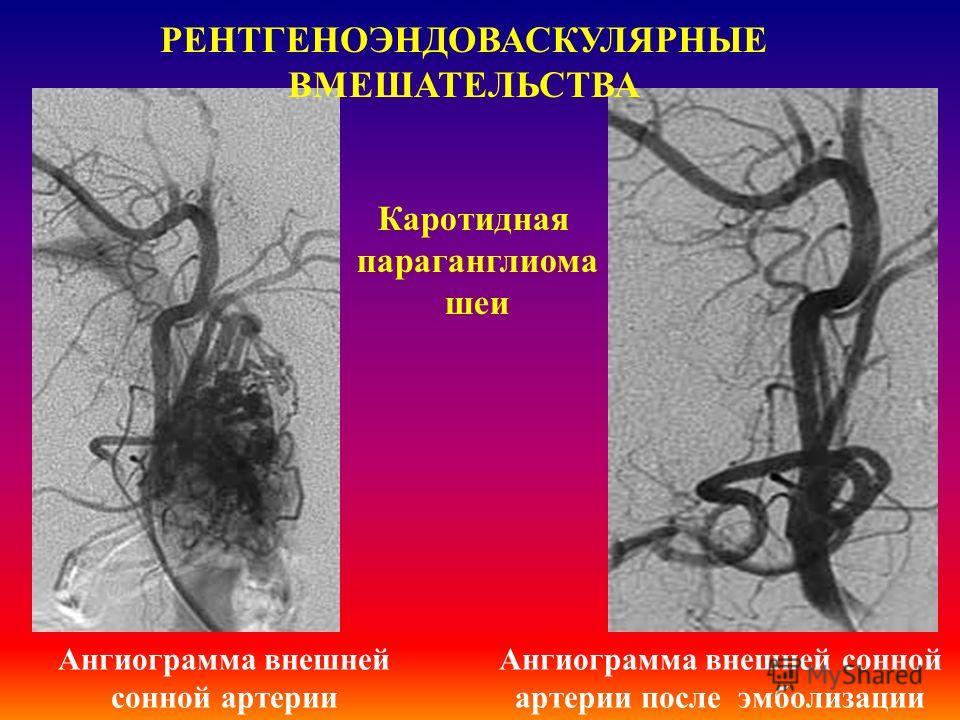 ІІІ. Інтервенционные рентгенохирургические вмешательства под контролем традиционных или компъютерных технологий Методики рентгеновского исследования органов дыхания диагностическая пункционная биопсия