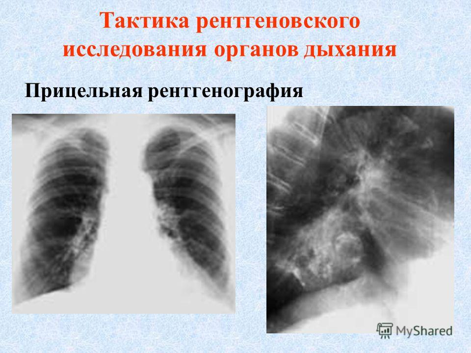 Тактика рентгеновского исследования органов дыхания 3. После обзорных снимков и рентгеноскопии или сразу же после рентгенографии или флюорографии проводят томографию.