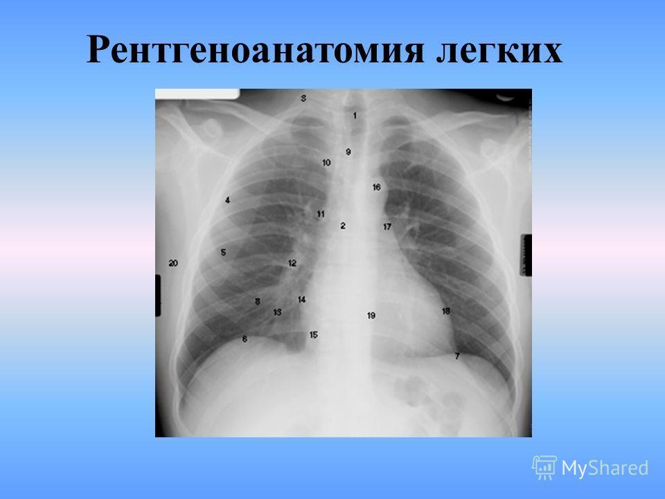 Рентгеноанатомия легких БРОНХОПУЛЬМОНАЛЬНЫЕ СЕГМЕНТЫ. МИДИАСТИНАЛЬНЫЕ ПРАВАЯ И ЛЕВАЯ ПОВЕРХНОСТИ