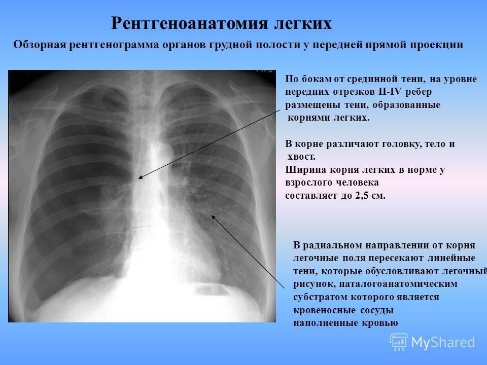 Обзорная рентгенограмма органов грудной полости в передней прямой проекции срединная тень сумацийным наслоением теней, которые дают сердце, наполненное кровью грудина грудной отдел позвоночника мягкие ткани сосуды нервы лимфатические узлы По бокам от