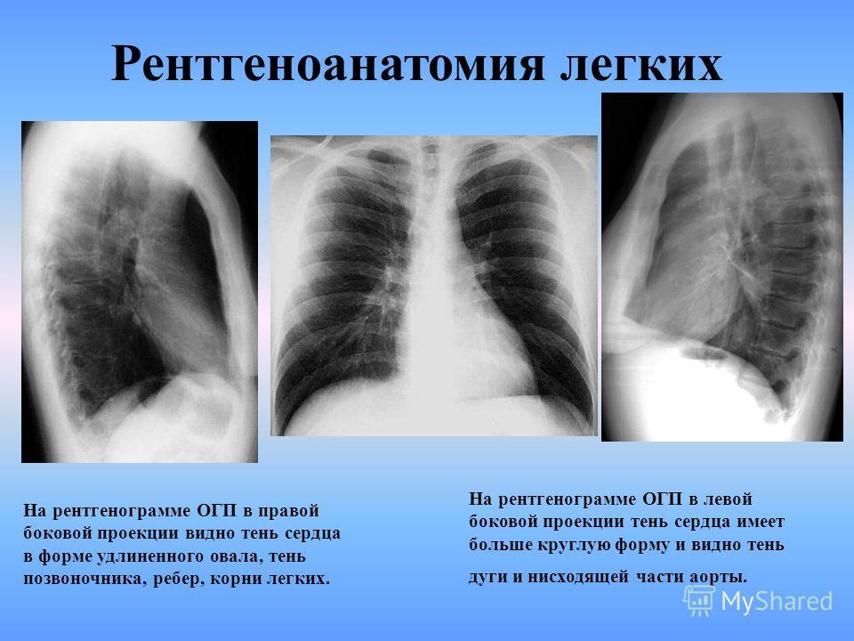 Рентгеноанатомия легких