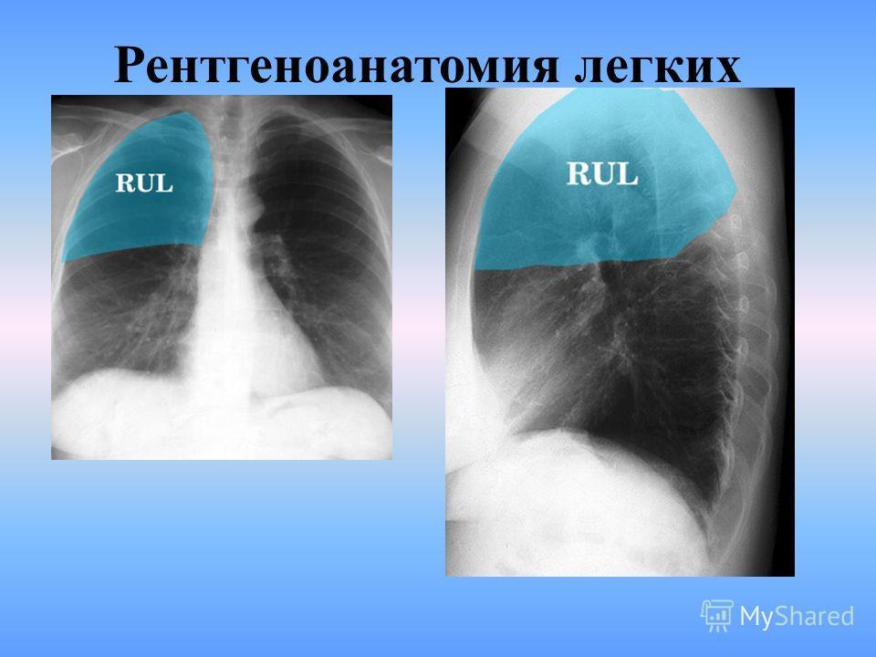 На рентгенограмме ОГП в левой боковой проекции тень сердца имеет больше круглую форму и видно тень дуги и нисходящей части аорты. На рентгенограмме ОГП в правой боковой проекции видно тень сердца в форме удлиненного овала, тень позвоночника, ребер, к