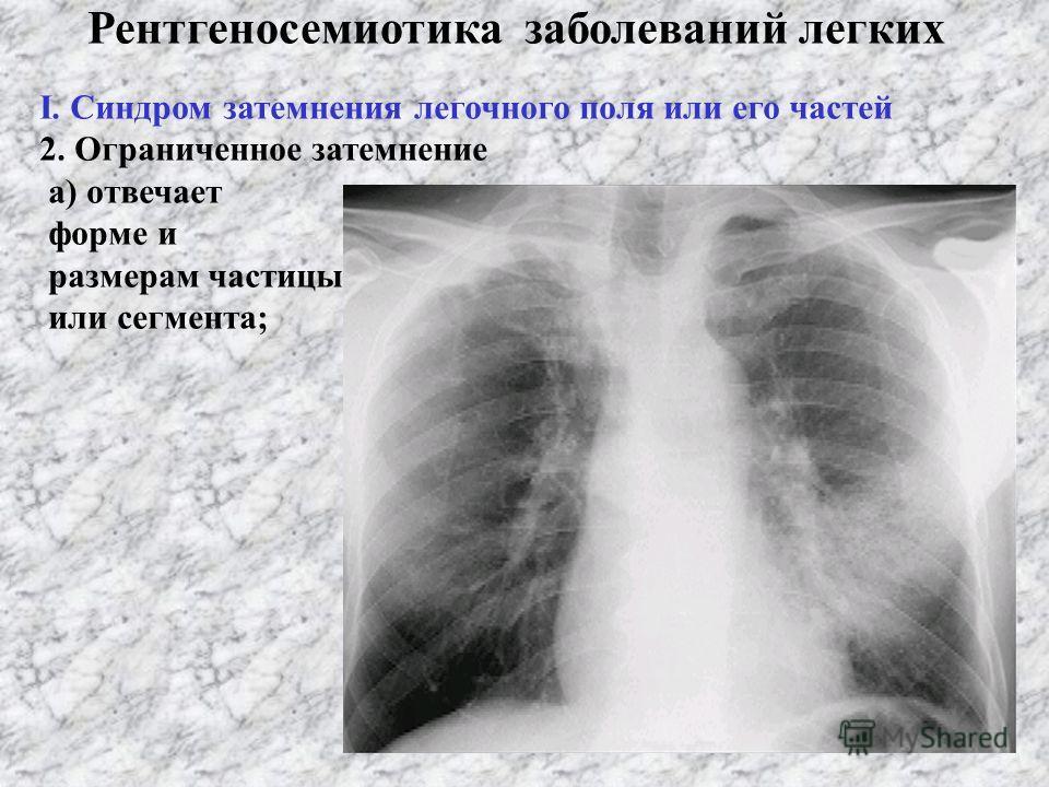Рентгеносемиотика заболеваний легких І. Синдром затемнения легочного поля или его части 1. Разширение затемнения а) тотальное; б) субтотальное (полутотальное) Билатеральная пневмония