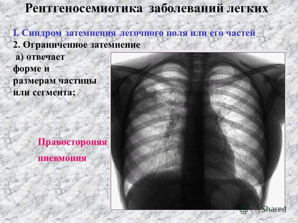 Рентгеносемиотика заболеваний легких І. Синдром затемнения легочного поля или его частей 2. Ограниченное затемнение а) отвечает форме и размерам частицы или сегмента;
