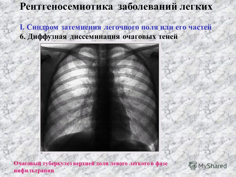 Рентгеносемиотика заболеваний легких І. Синдром затемнения легочного поля или его частей 3. Круглая тень 4. Кольцеобразная тень 5. Очаговые тени и их ограниченная диссеминация а) миллиарные; б) мелкоочаговые; в) средних размеров; г) больших размеров