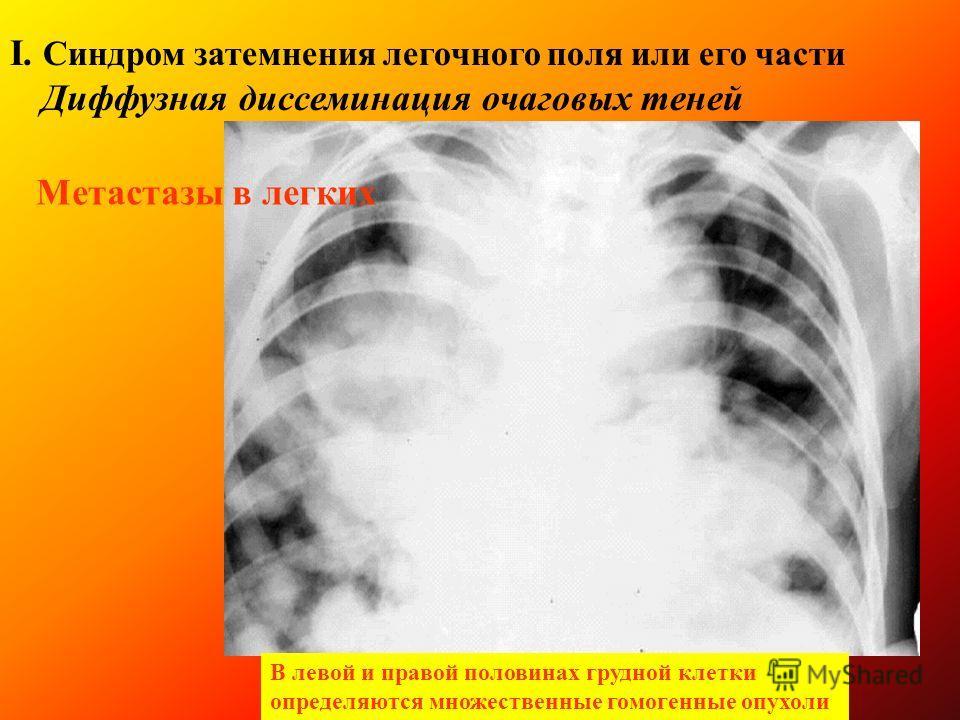Рентгеносемиотика заболеваний легких І. Синдром затемнения легочного поля или его частей 6. Диффузная диссеминация очаговых теней Очаговый туберкулез верхней доли левого легкого в фазе инфильтрации